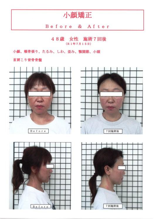 48歳女性小顔矯正&骨盤矯正