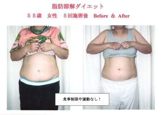 中高年の肥満と女性ホルモン