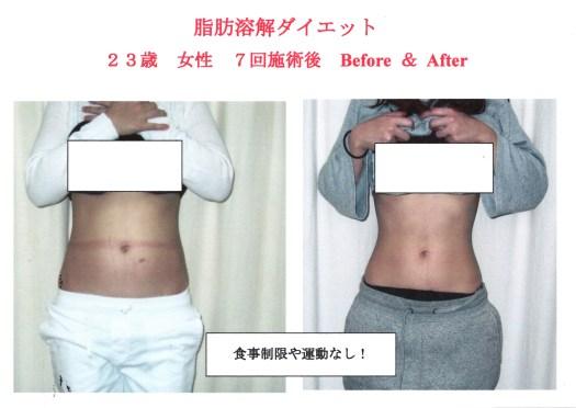 きれいに痩せるためのダイエット法
