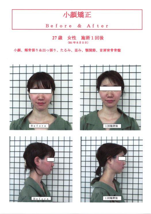 小顔矯正施術の流れ