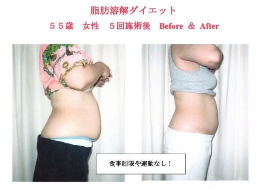 脂肪溶解ダイエットの注意点