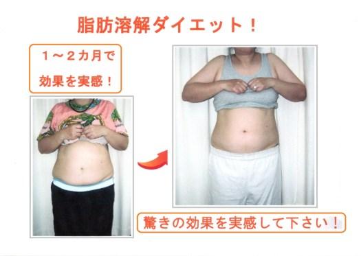 脂肪溶解ダイエットBefore&Afte