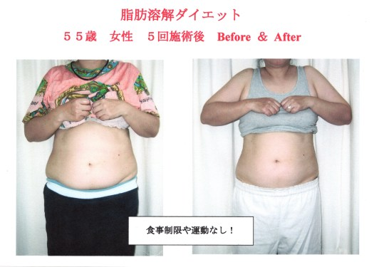 肥満と食生活習慣