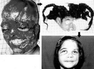 Sandeep Kaur: reimplantación facial