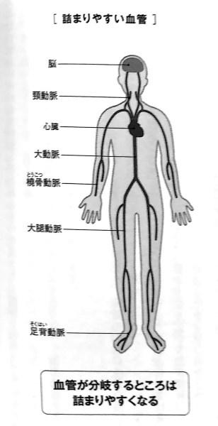 詰まりやすい血管 第2部P68