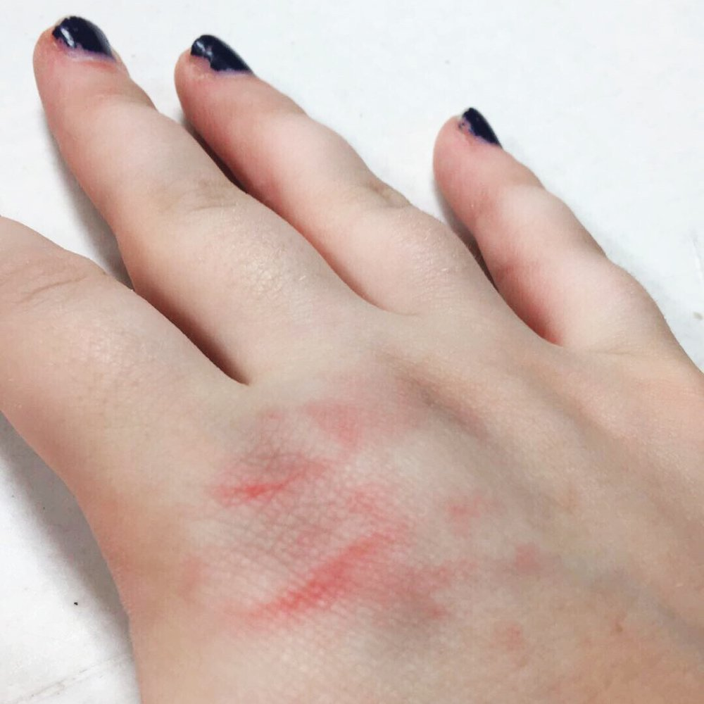 My hand two hours after the incident.