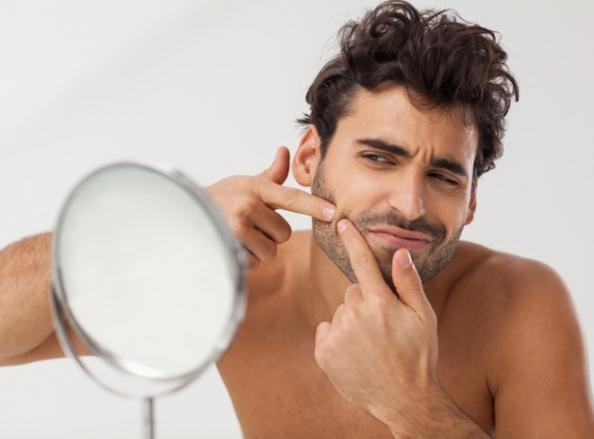 man-face-acne