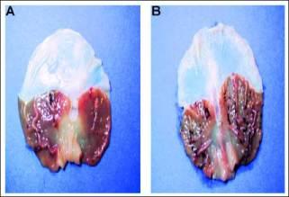 glándula pineal calcificada