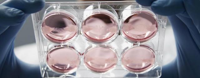 "Usa: ricostruita ""vagina bionica"" su 4 pazienti"
