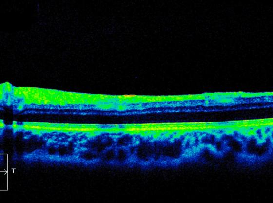 L'immagine rappresenta un esame diagnostico OCT (Tomografia ottica computerizzata)