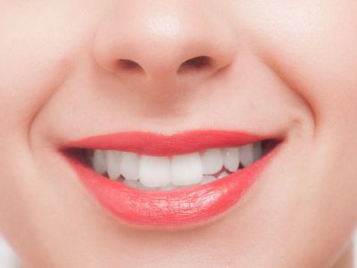 インプラントで自分の歯が蘇る?歯で悩んでいたら検討の価値あり