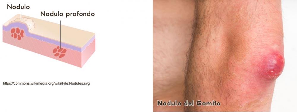 nodulo