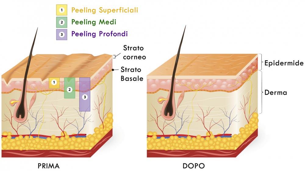 Tipi di Peeling