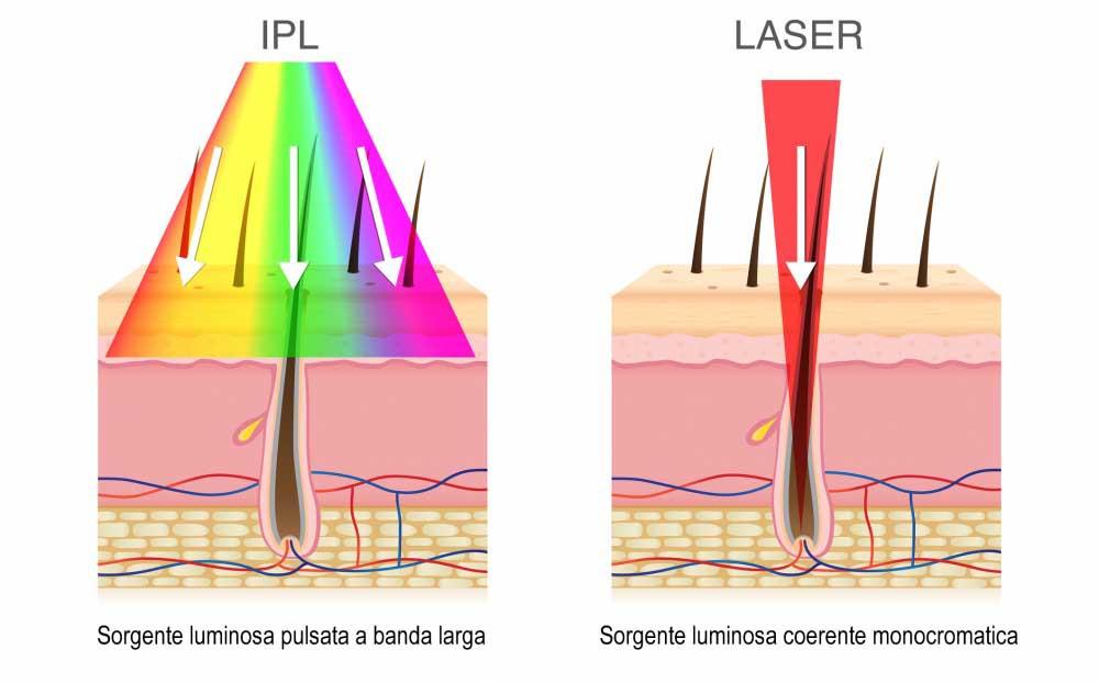Laser Luce Pulsata