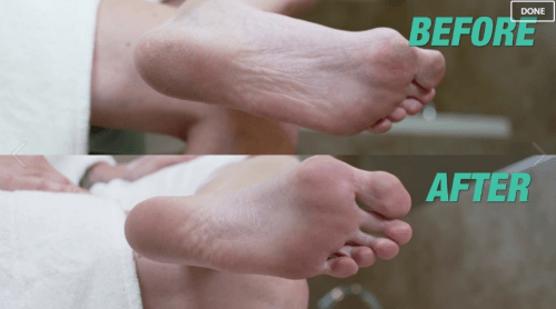 Набор для педикюра Crichenna ez foot peeling simple and easy