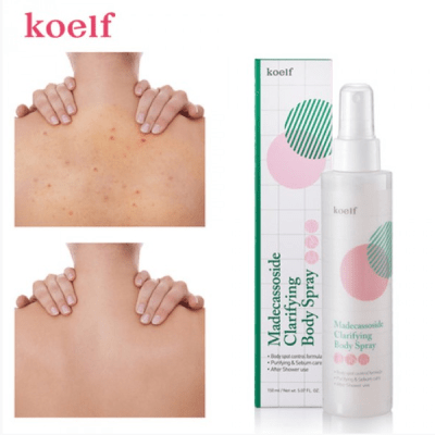 Лечебный спрей для тела c мадекассосидом Koelf Madecassoside Clarifying Body Spray