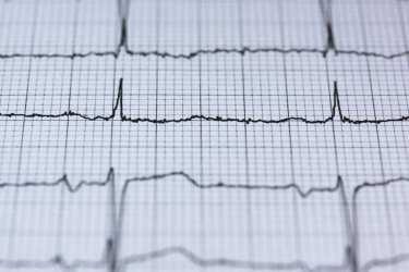 マグネシウムクリームと冠動脈疾患