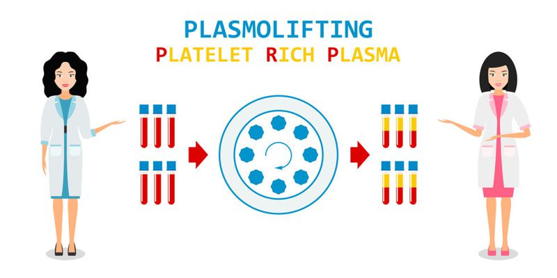 platelet rich plasma from a centrifuge