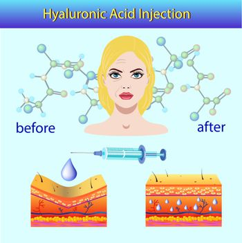 dermal filler hyaluronic acid