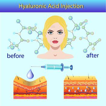 dermal filler hyaluronic acid