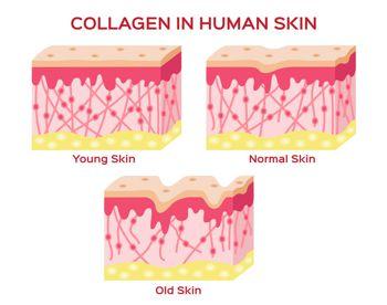 collagen in women