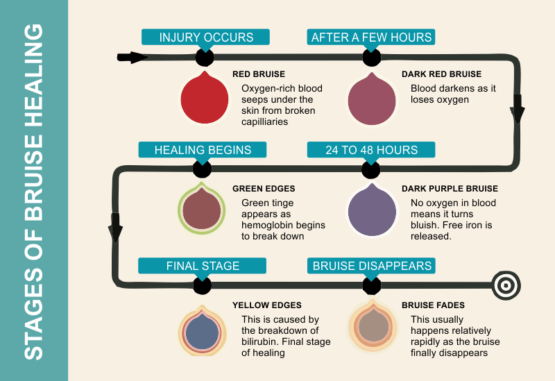 the stages of bruise healing