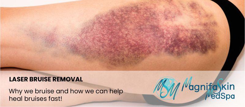 laser bruise healing featured image