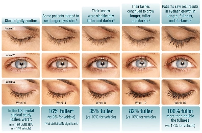 typical latisse lash lengthening progress chart from magnifaskin medspa in wilmington delaware