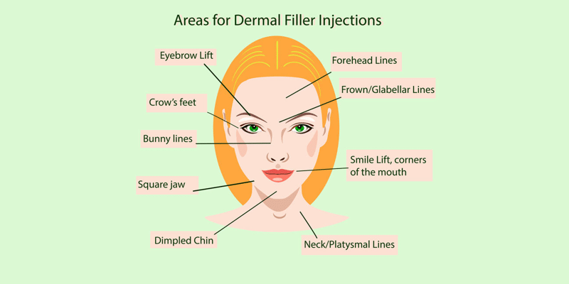 Dermal fillers injection areas
