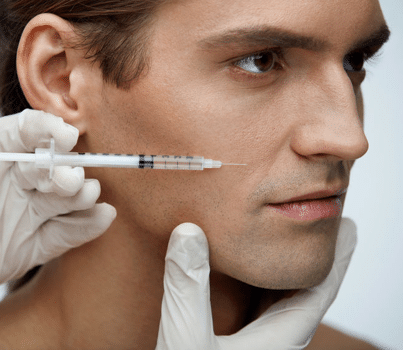 man having nasolabial fold filled with juvederm