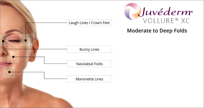 treatment areas juvederm vollure