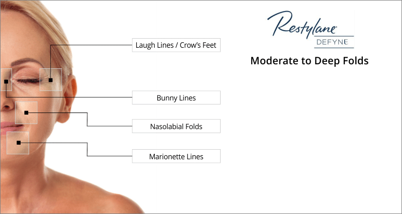 treatment areas restylane defyne