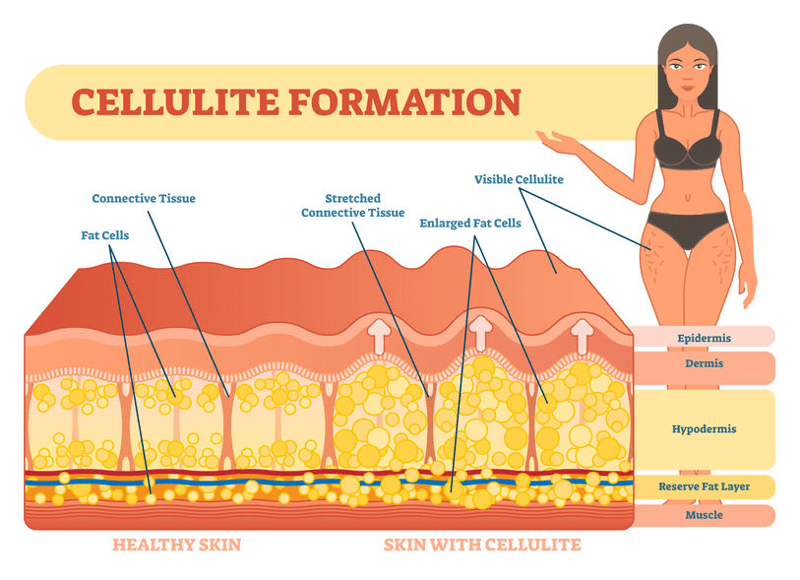 Cellulite most often forms when weakened connective tissues are pushed up in an irregular pattern by underlying fat
