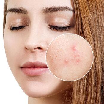 7 feel-good beauty treatments for Acne