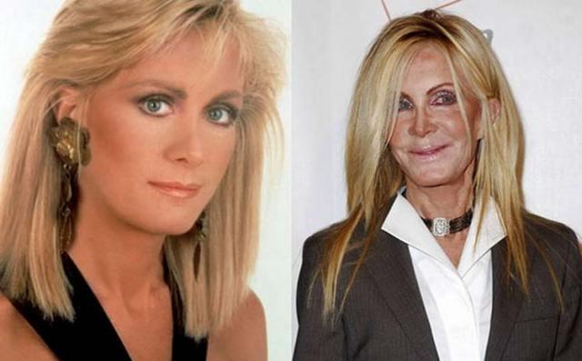 11-Joan-Van-Ark-before-after