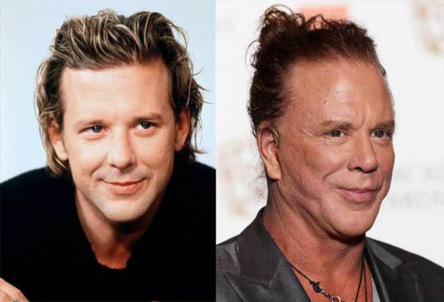 4-mickey-rourke-before-after