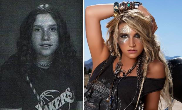 6-Kesha