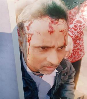 फावड़ा मारकर फोड़ दिया युवक का सिर, एएसपी से की शिकायत