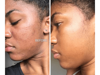 Black Does Crack! Microdermabrasion