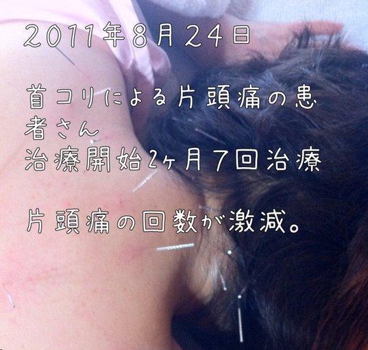 肩こりによる偏頭痛の治療