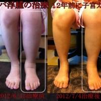 無意識に信じていいの?「足のしびれを治す」リンパマッサージと足つぼ