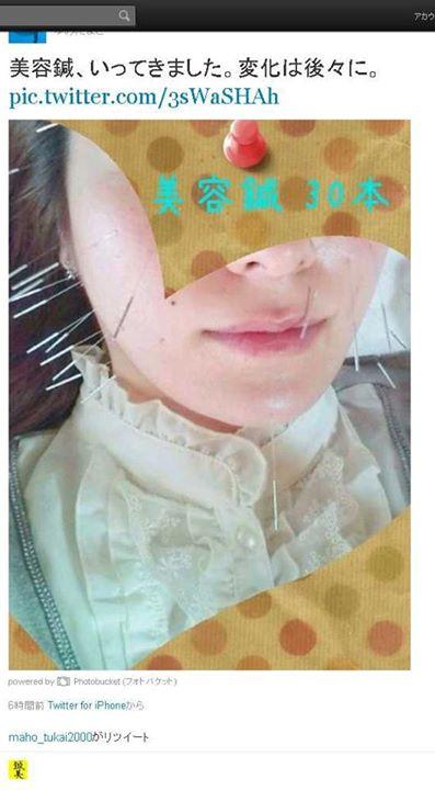 美容針行ってきました。変化は、後々に・・・|福岡県福津古賀北九州市(美容鍼・美顔鍼)