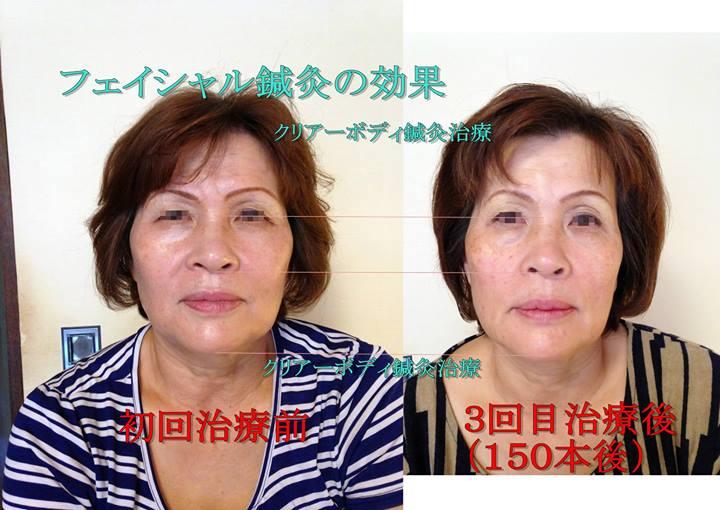 小顔になるフェイシャル鍼灸(美容鍼・美顔鍼)