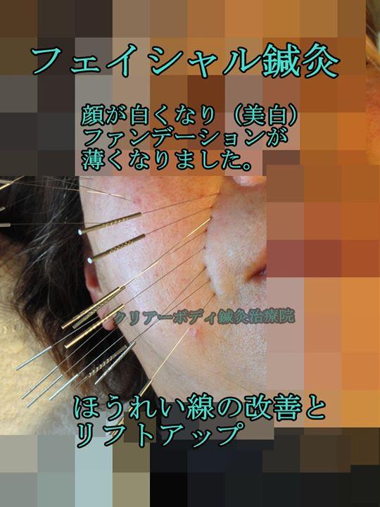 フェイシャル鍼灸(美容鍼・美顔鍼) 顔が白くなり(美白)ファンデーションが薄くなりました。|福岡県福津古賀宗像北九州市