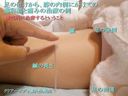足の付根から膝の内側にかけての違和感と痛みの治療