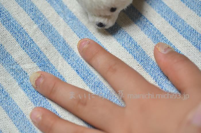 両手&両足の爪の半分くらいが剥がれる