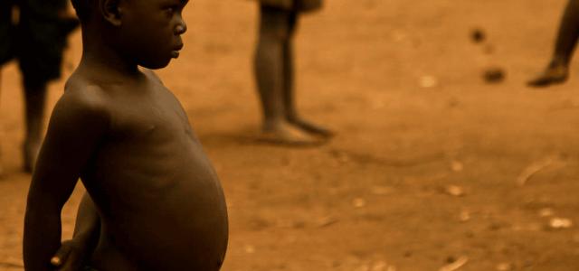 Panorama de la malnutrition dans le monde