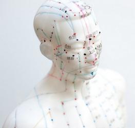 San Diego acupuncturist