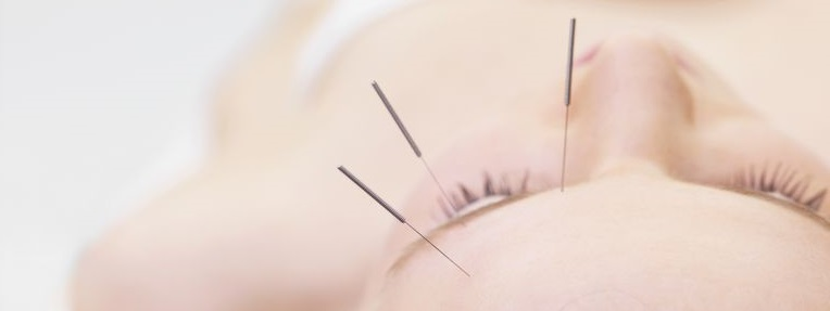 acupuncture-for-retinitis-pigmentosa