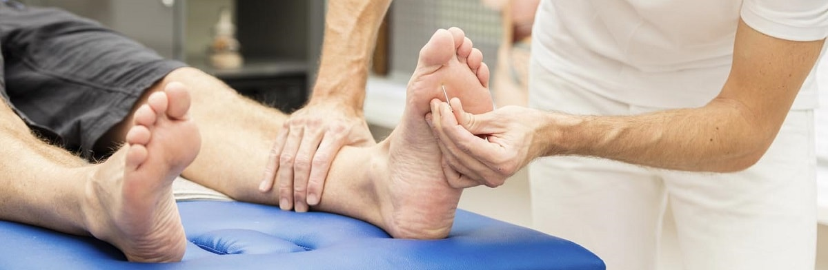 The Efficiency of Acupuncture for Neuropathy - Makari Wellness